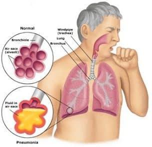penyakit yang menyerang paru-paru